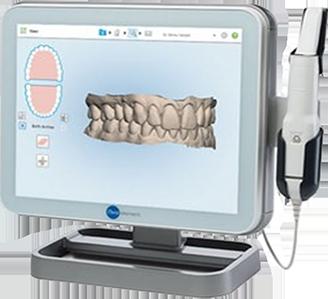 iTero - Digital dentistry - Ivo Dentech