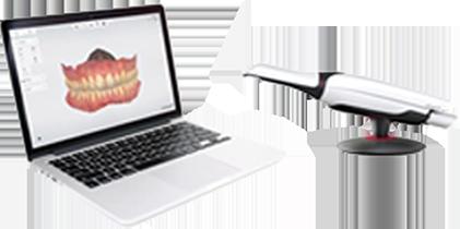 Trios - Digital dentistry - Ivo Dentech